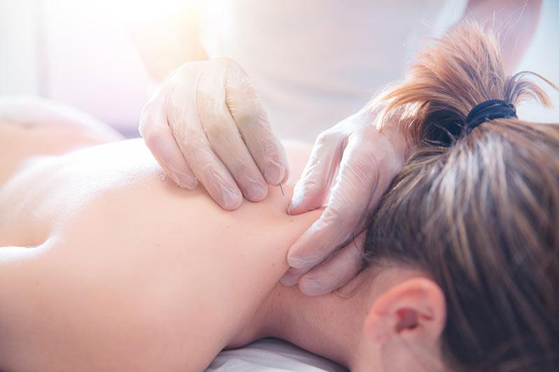 Akupunktur nach TCM